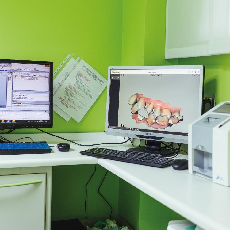 scanner intraorale | prevenzione prato sesia