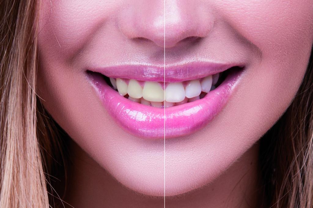 sbiancamento dentale a prato sesia
